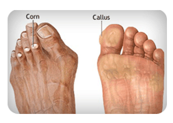 Corns-and-Calluses-Treatment