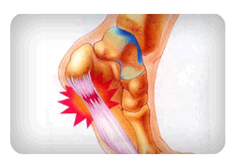 Heel-Pain-Treatment