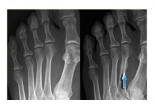 Stress-Fractures-NJ