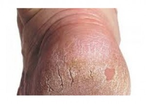 Dry Skin and Heel Fissures Treatments
