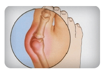 Bunion-Treatment