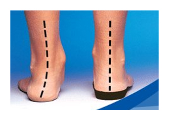 Custom-foot-orthotics