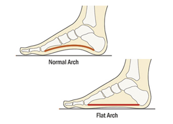 Flat-Feet-Treatment-NJ