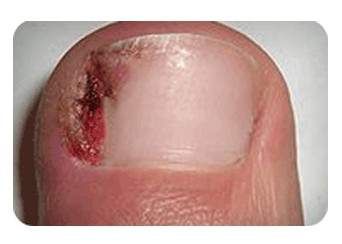 Ingrown-Toenail-Treatment