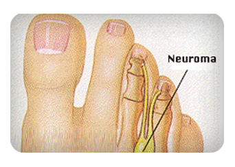 Treatment-For-Neuroma