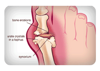 gout_Painful_Joint